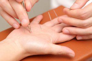 手の平にへバーデン結節の高麗手指鍼をする様子