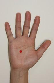 過敏性腸症候群の鍼灸のツボの位置