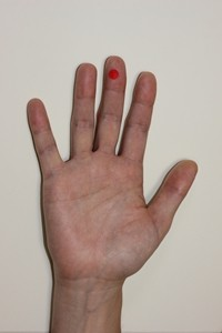 高麗手指鍼の三叉神経痛のツボの位置