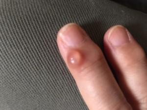 指の第一関節にできた ミューカシスト