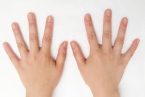 へバーデン結節の手 目黒いべ治療院